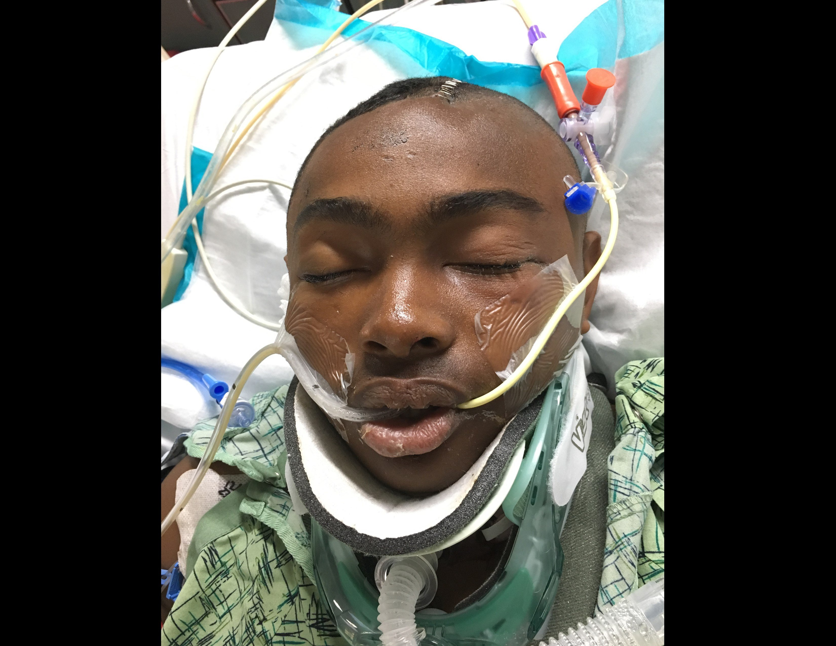 injured bicyclist reunited family at scripps mercy hospital 16 year old dayonte broughton